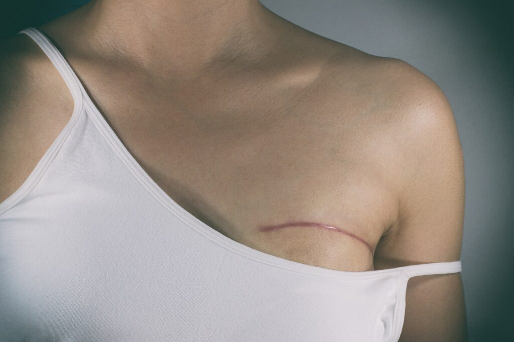What is Radical Mastectomies